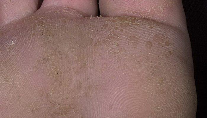 Мелкоточечный кератолиз: лечение