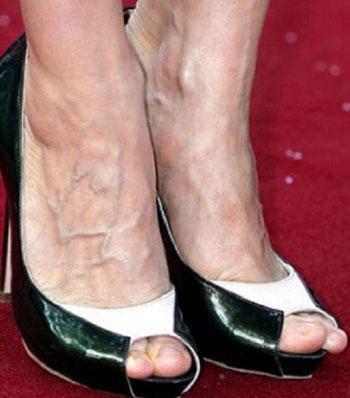 Почему видно вены на ногах