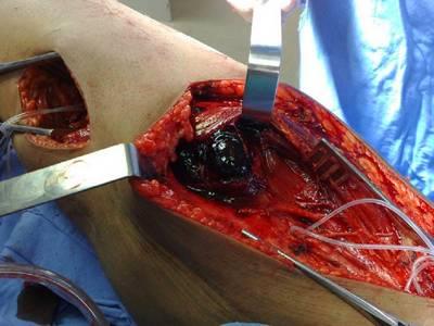 Основным принципом хирургического лечения повреждений артерий является операция!