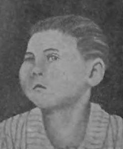 Девочка с саркомой верхней челюсти