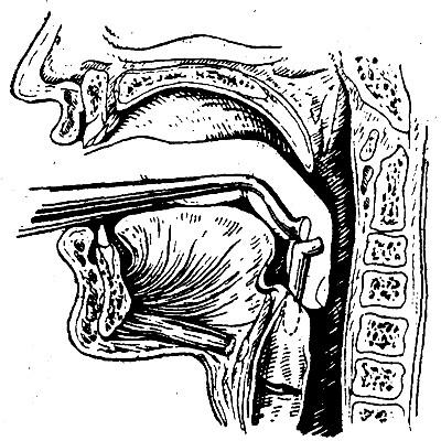 Введение интубационной трубки в гортань