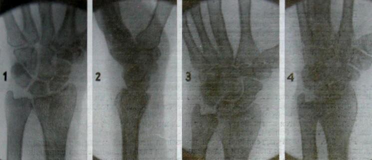 Перелом ладьевидной кости с отломом клиновидного фрагмента