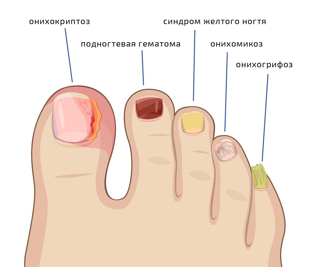 Грибок ногтей: симптомы, методы лечения