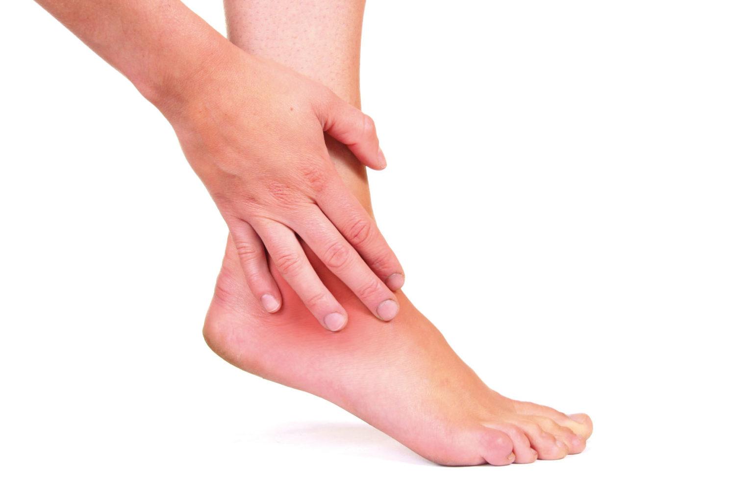 Отек суставов — причины и лечение